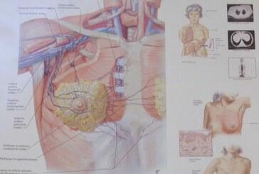 Rak dojke – najćešća maligna bolest kod žena (VIDEO)